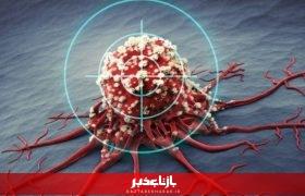 ثبت سالانه ۱۳۵ هزار ابتلا به سرطان در ایران