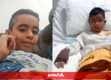 کودک فداکار سوخت تا جان چهار کودک دیگر را نجات دهد