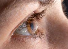 آسیب عصبی قرنیه از علایم کووید طولانی مدت است