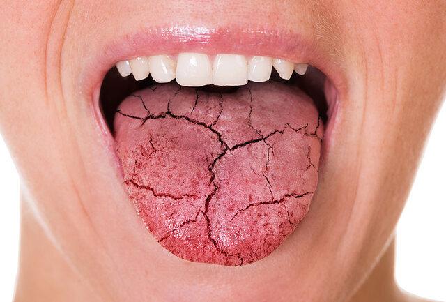 تاثیر میزان قند خون در ایجاد خشکی دهان