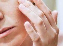 نکاتی برای تشخیص و درمان خانگی اگزمای صورت