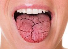 راهکاری برای بهبود خشکی دهان